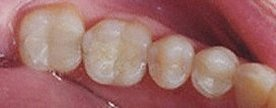 White Fillings - After